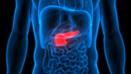 What Are The Signs and Symptoms of Pancreatic Cancer?